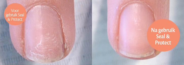 seal-en-protect-before-after